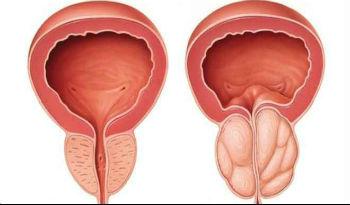 Powiekszona próstata